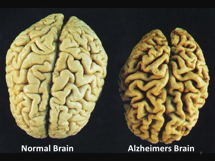 normal-vs-alzheimers-brain.jpg