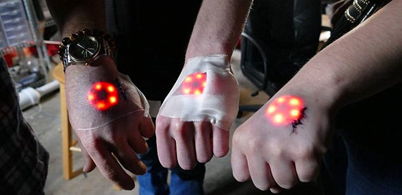 植入酷酷的发光芯片居然是为了治病?